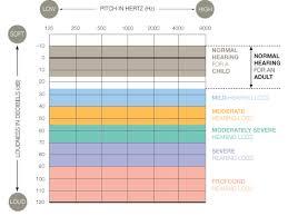 Hearing Chart Diagnosing Hearing Loss Terrace Terrace Hearing Clinic Ltd