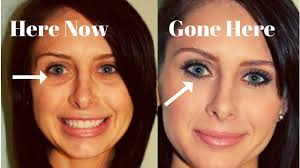 how to hide dark circles under your eyes under eye bags removal