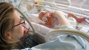 Premature Baby Survival Rates Chart How Long Your Premature Baby Will Stay In The Nicu And