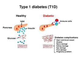 Type 1 Diabetes Vs Type 2 Diabetes Comparison Chart Difference Between Type 1 And Type 2 Diabetes Mellitus
