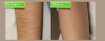 نتیجه تصویری برای عکس قبل و بعد از لیزر
