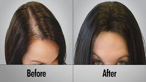 folic acid hair growth before and after