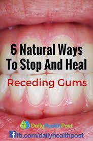 Best 25+ Receding gums ideas on Pinterest | Grow back receding ...