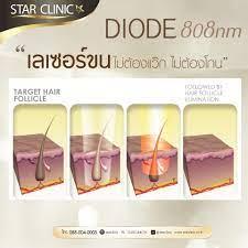 diode 808 nm กำจัดขนด้วยเลเซอร์ไดโอดStar Clinic Star Clinic
