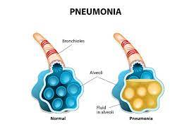 pneumonia symptoms signs and treatment