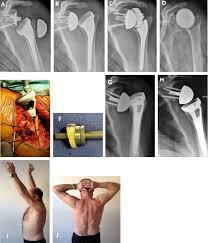 reverse total shoulder arthroplasty
