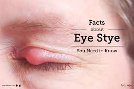 facts about eye stye you need to know