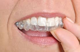 dangers of diy healthcare specifically diy orthodontics there are some companies offering patients kits so they can take impressions of their teeth