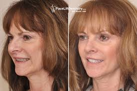Face Lift Dentistry Niche On Fire Thanks To Los Angeles