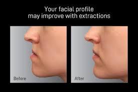 orthodontic extraction vs non