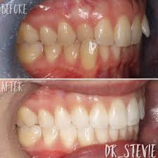 My Patient Of The Week Crossbite And Overbite Correction