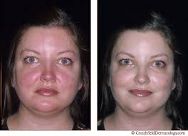 bare minerals before and after rosacea. rosacea | crutchfield dermatology bare minerals before and after r