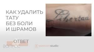 удаление татуировки лазером цены в москве услуги сведения
