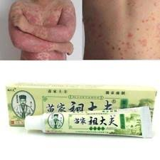 Psoriasis Treatment | eBay