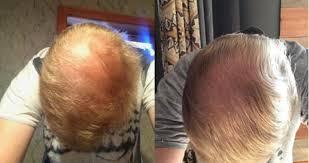 hair loss treatments cations