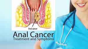 Imagini pentru cancer anal