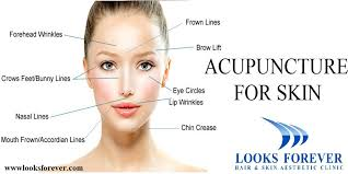 Acupuncture Facelift Points Chart Acupressure Facial Rejuvenation Points Chart Free Download