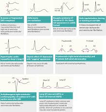 Types Of Arrhythmia Chart Diagnosis And Management Of Narrow And Wide Complex