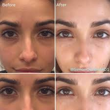 removal of dark circles under eyes using coolaser thank you michelematuro for allowing us to