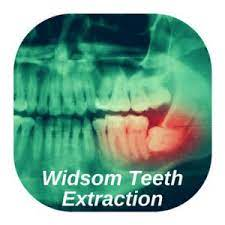 Many patients prefer the relative convenience of undergoing the procedure to remove all of their wisdom teeth. Emergency Tooth Extraction Near Me 24 7 No Insurance Ok