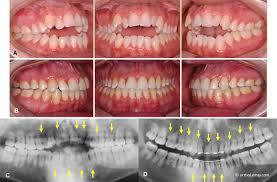 b À la fin du traitement c radiographie panoramique avant le traitement les flèches indiquent quelques unes des dents les plus sévèrement affectées