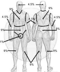 Rule Of 9 S For Burns Chart Total Body Surface Area Tbsa Calculate Percentage Of