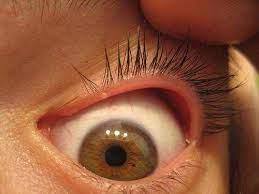 white p inside lower eyelid eyexan