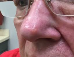 firm waxy nodule on the nose