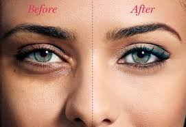 how to remove dark circles under your