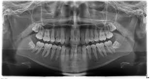 Resultado de imagen de ortopantomografia