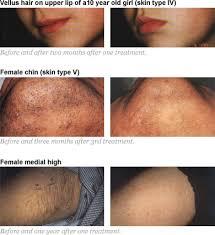 painless laserlight permanenet hair