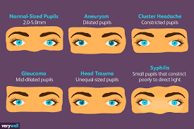 Normal Pupil Size Chart Pupil Size And Your Health