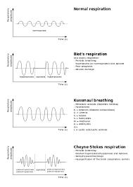 Types Of Breathing Patterns Kussmaul Breathing Wikiwand