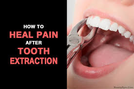 tooth extraction home idea diy