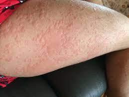 鯖 蕁麻疹 写真