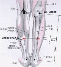 acupuncture treatment for varicose veins