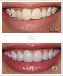 15 Best Dental Veneers Images Dental Veneers Dental