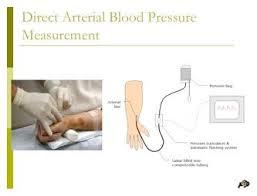 wanneer bloeddruk meten