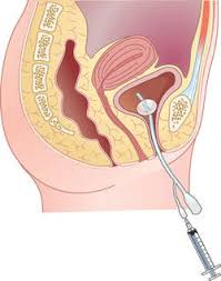 Bladder Catheterisation Catheterization Definition Of Catheterization By Medical