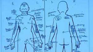 Slain Palmdale Boy Had Bb Lodged In His Groin Area Nurse Testifies