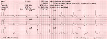 Large Block Method To Calculate Heart Rate Ecg Medical