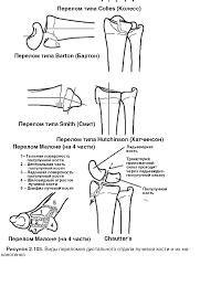 КСС Травма Переломы костей предплечья и локтевого сустава  Травма Переломы костей предплечья и локтевого сустава