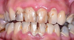 Tundlikud hambad nõuavad tähelepanu : Kodutohter