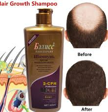 Best Natur Hair Shampoo Brands And Get Free Shipping 8n6nn2kb