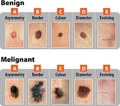 Abcde Chart For Diagnosis Of Cancerous Mole Skin Moles