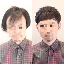 M字 パーマ実態報告前髪が長くても割れない方法パーマ実例