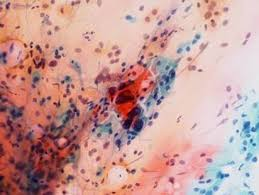 「子宮癌検診」の画像検索結果