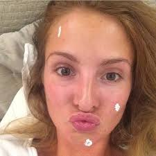 natural beauty millie macktinstosh wasn t afraid to share the fact she suffers from