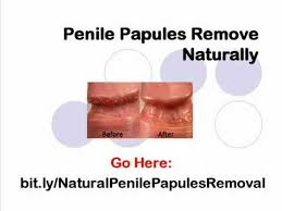 How to Get Rid of Pearly Penile Papules (bumps) in 3 Days! - YouTube