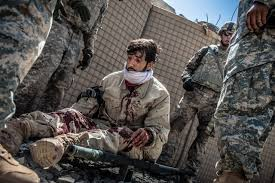 photos afghan iers bear brunt of attacks as war winds down  an afghan security guard is wounded after an attack on his convoy near kandahar s ancient howz